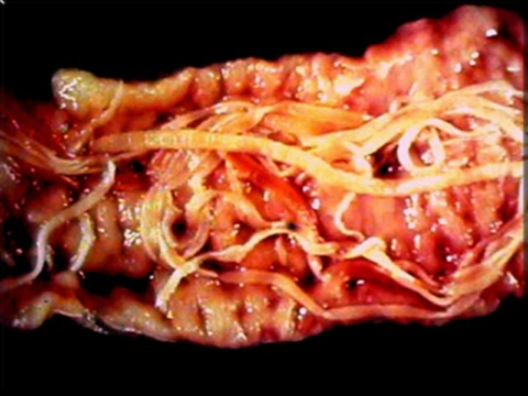 Purify Tapeworm Cleanse Help Rid Tapeworms Today With